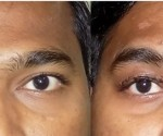 Ptosis treatment result with new technology -2